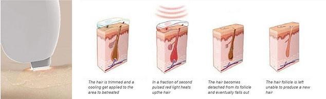 epilazione_laser